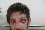 На Прикарпатті жорстоко побили громадського активіста