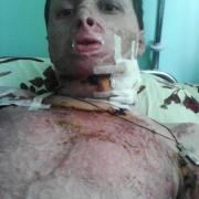 25-річний Ігор Масловський з Франківщини потребує допомоги на лікування важких опіків (ФОТО)