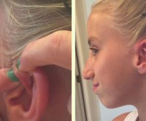 Дівчинка вирішила видавити прищ, якому 6 років. Те, що СТАЛОСЯ ПІСЛЯ ввело маму в ступор!