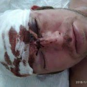 Каменем по голові: в Калуші невідомі розтрощили перехожому лобову кістку та втекли. ФОТО