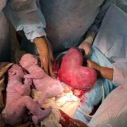 «Справжнє диво»: жінка з унікальною «маткою-серцем» народила близнюків (фото 18+)