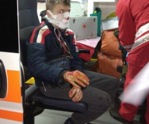 Вибиті зуби, підозра на струс мозку: в Івано-Франківську хлопець в'їхав у незакриту яму. ФОТО