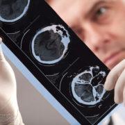 30-річному прикарпатцю п'ять років не могли поставити правильний діагноз
