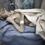 Родичі довели жінку до стану «живої мумії» (ФОТО 18+)