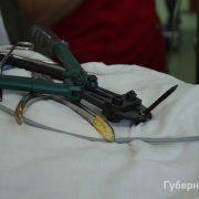 Чоловік два роки прожив із цвяхом у голові (фото)