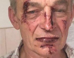 Заступився: на Івано-Франківщині жорстоко побили АТОвця, – ЗМІ (фото 18+)