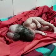 Народилася дівчинка з трьома головами: моторошні фото і відео 18+