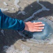 Лікар розповів, чим небезпечна зустріч із медузою