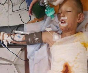 Недитячі ігри: 8-річного хлопчика облили бензином і підпалили (фото)