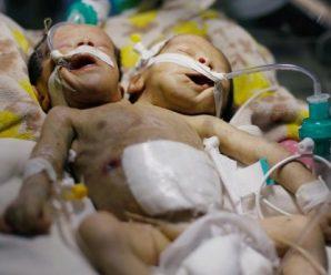На Буковині народилися сіамські близнючки