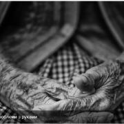 Про які захворювання можуть розповісти руки літніх людей