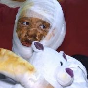У лікарні злодійка обікрала дівчину, яку підпалив батько