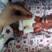 610 грамів щастя: в перинатальному центрі виходили немовля, яке народилось на 24 тижні