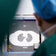 Одужання після коронавірусу: які проблеми зі здоров'ям можуть залишитися