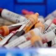 Названо дати спаду епідемії коронавірусу в Україні