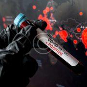 Україна на порозі другої хвилі епідемії коронавірусу, повертаємося до максимуму. Коментар академіка Анатолія Загороднього