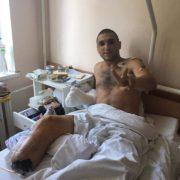 Франківець Артур Хлопек підірвався на міні на Донбасі – побратими просять про допомогу