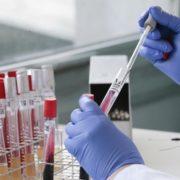 В українських заробітчан, які приїхали до Естонії, виявили коронавірус