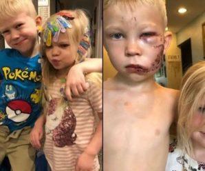"""""""Якщо хтось і мав померти, то краще я"""": 6-річний хлопчик врятував молодшу сестричку від нападу собаки"""