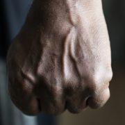 Під Одесою жорстоко побили суддю: жінці зламали ребра