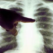 Медики фіксують перші випадки безсимптомного двобічного запалення легень