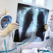 На Прикарпатті другу добу поспіль одужали від COVID-19 більше людей, ніж захворіли