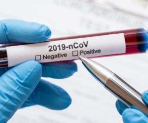 Українцям дозволили не робити тест на COVID-19 після ізоляції, але за певних умов
