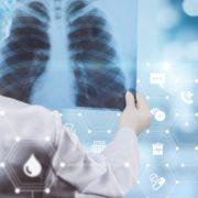 Через коронавірус невиявлені випадки туберкульозу загрожують новою епідемією – ВООЗ