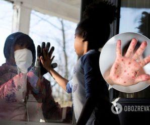 Пандемія COVID-19 може спровокувати спалах небезпечної інфекції – вчені