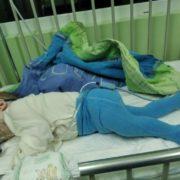 Не дихає, коли спить: рідні дворічного малюка, у якого рідкісна хвороба, просять про допомогу