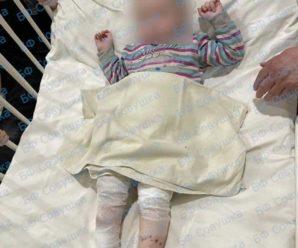 У лікарні Дніпра рятують двох дітей, які отримали сильні опіки від «Крота». Давайте разом допоможемо