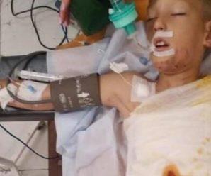 12-річний хлопчик підпалив себе заради того щоб отримати лайків у соцмережі