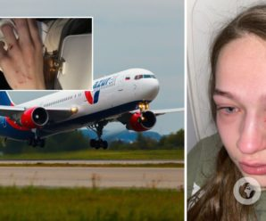 Молодій українці в літаку роздряпали обличчя і відгризли ніготь (фото, відео 18+)