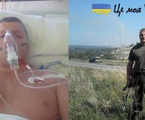 """""""Дуже потрібна допомога"""": в Чехії в лікарні лежить наш військовий учасник АТО"""