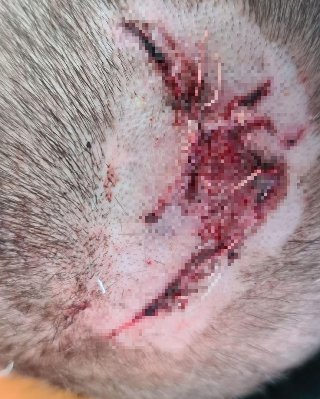Рана від удару зі швами на голові хлопця