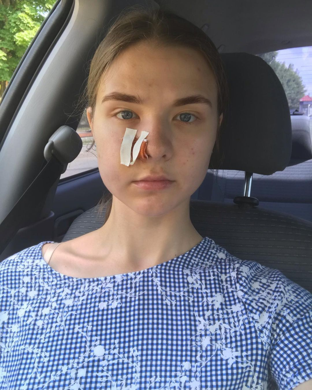 В обличчя дівчини вистрілили зтравмата;