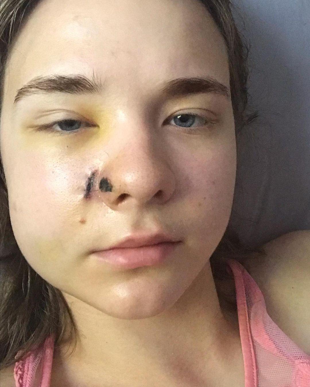 Куля зачепила щоку і ніс