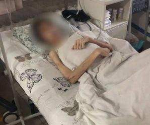 """Батько заморив голодом власного сина. Вважав, що хлопець потребує """"духовному лікування"""", а не допомоги медиків"""