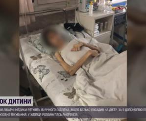"""""""Ріст 180 см, а вага – 30 кг"""": лікарі рятують хлопця, якого батько лікував """"від нечистого"""""""