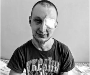 """""""Підірвався під час вибуху"""": важкопораненому українському воїну терміново потрібна допомога"""