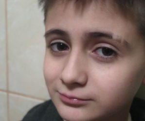 11 років Микита живе з трубочками у горлі і животі, зараз з'явився шанс це виправити